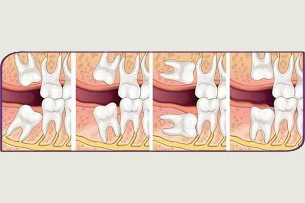 Çene Cerrahisi | ConceptDent Ağız ve Diş Sağlığı Polikliniği