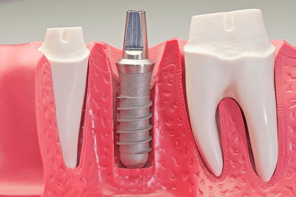 İmplantoloji | ConceptDent Ağız ve Diş Sağlığı Polikliniği